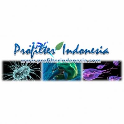 http://laserku.com/upload/Ultraviolet%20UV%20Water%20Disinfection%2C%20Ultraviolet%20Disinfection%2C%20UV%20Water%20Disinfection%2C%20UV%2C%20Ultraviolet%20pix_20121026223108_large2.jpg